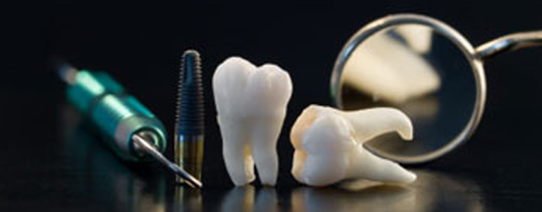 dentista parma implantologia a carico immediato